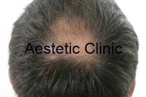 łysienie-plackowate-leczenie