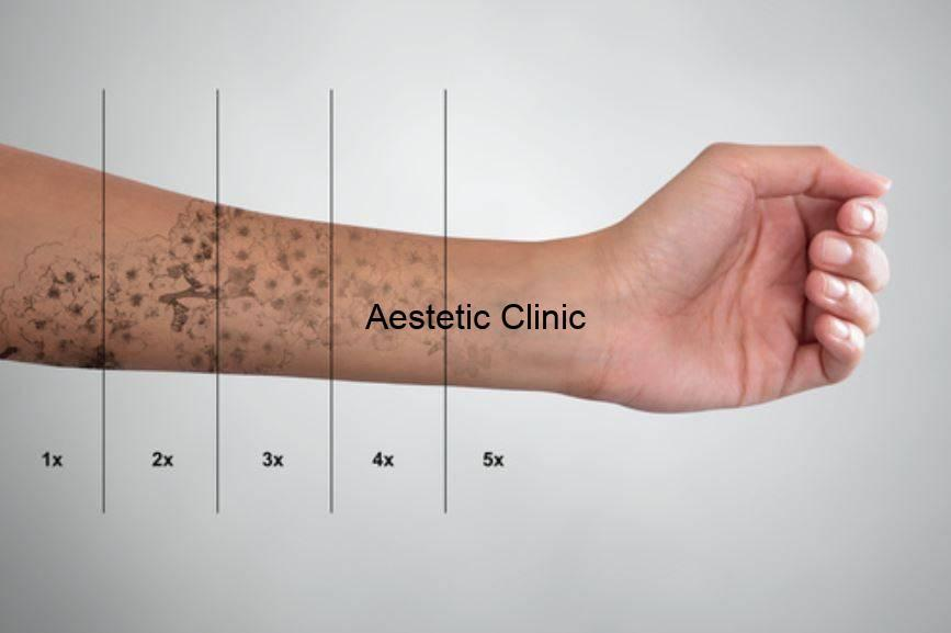 usuwanie tatuażu, magic pen