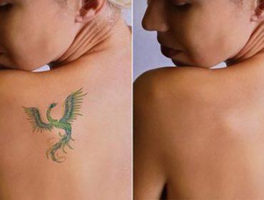 usuwanie tatuażu, tatuaż
