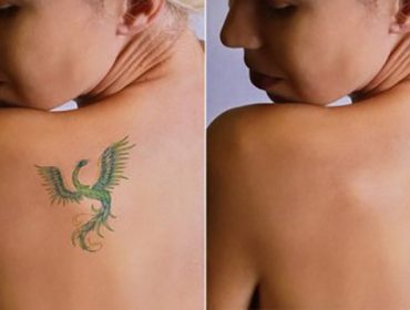 usuwanie tatuażu, tatuaż, usuwanie tatuaży, usuwanie tatuażu cena
