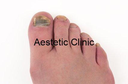 leczenie grzybicy paznokci, grzybica paznokci