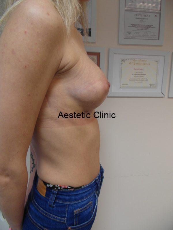 powiększanie-piersi-3