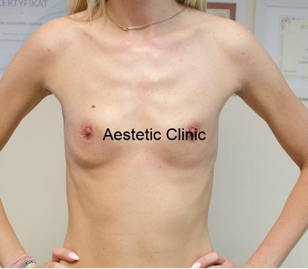 powiekszanie-piersi-przed