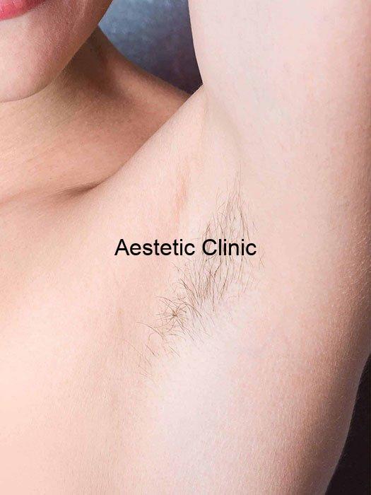 depilacja-laserowa-przed, depilacja pach