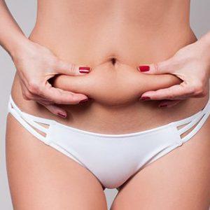 liposukcja, liposukcja NIL, odsysanie tłuszczu