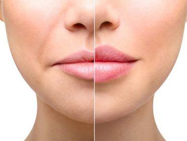 powiększanie ust, powiększanie ust Poznań