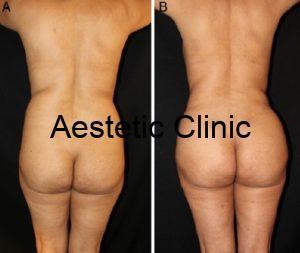 liposukcja nil 1, liposukcja laserowa