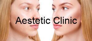leczenie blizn po trądziku, blizny po trądziku