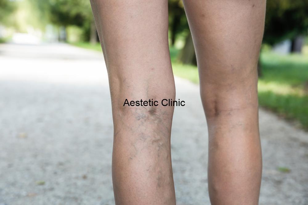 Jak usunąć naczynka na nogach