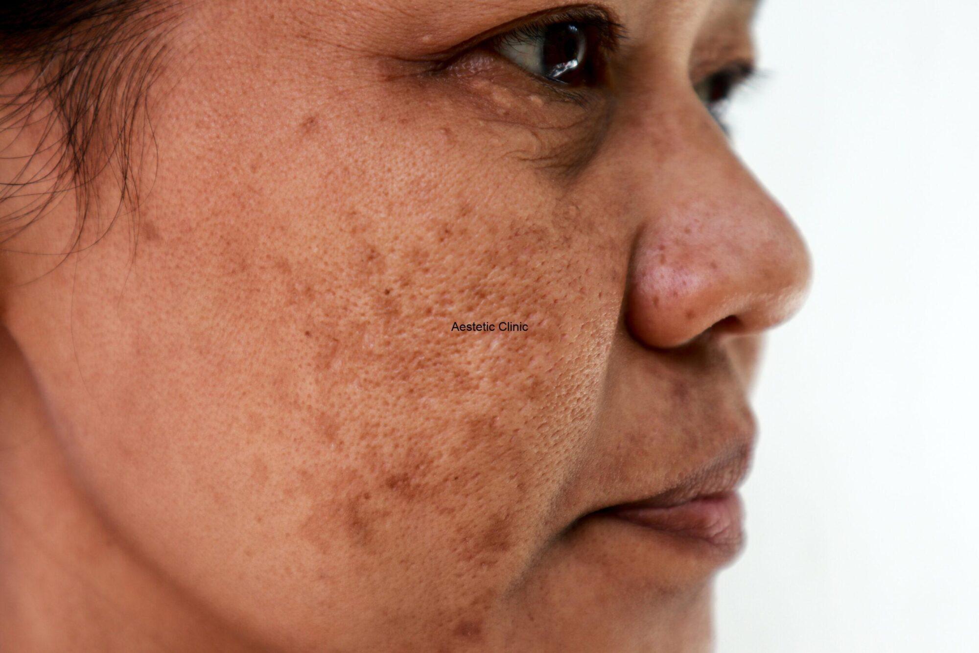 melasma, Melasma – jak usunąć przebarwienia skórne