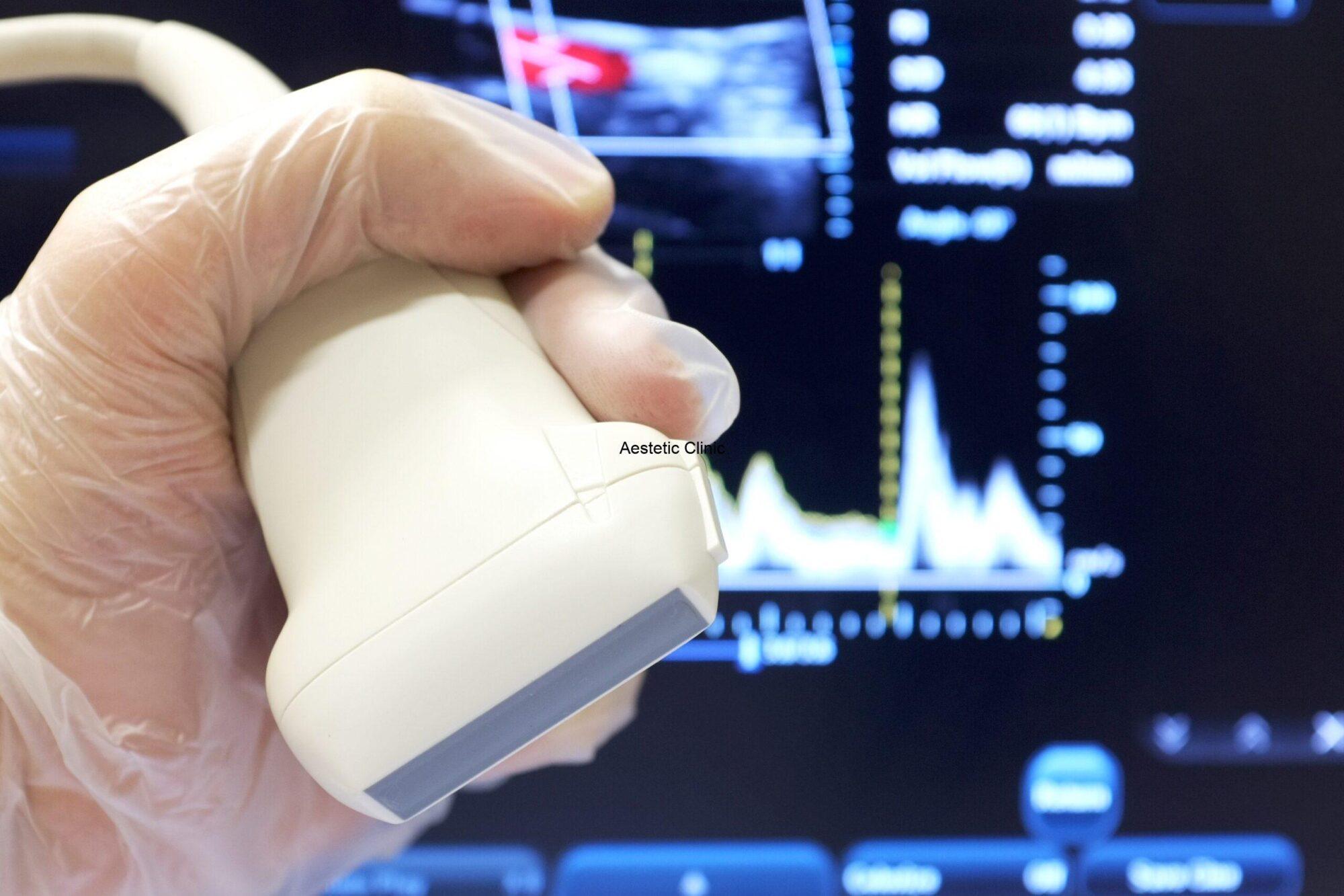 badanie dopplerowskie, usg doppler