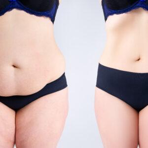 co to jest liposukcja