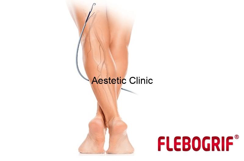 flebogrif
