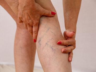 usuwanie żylaków nóg