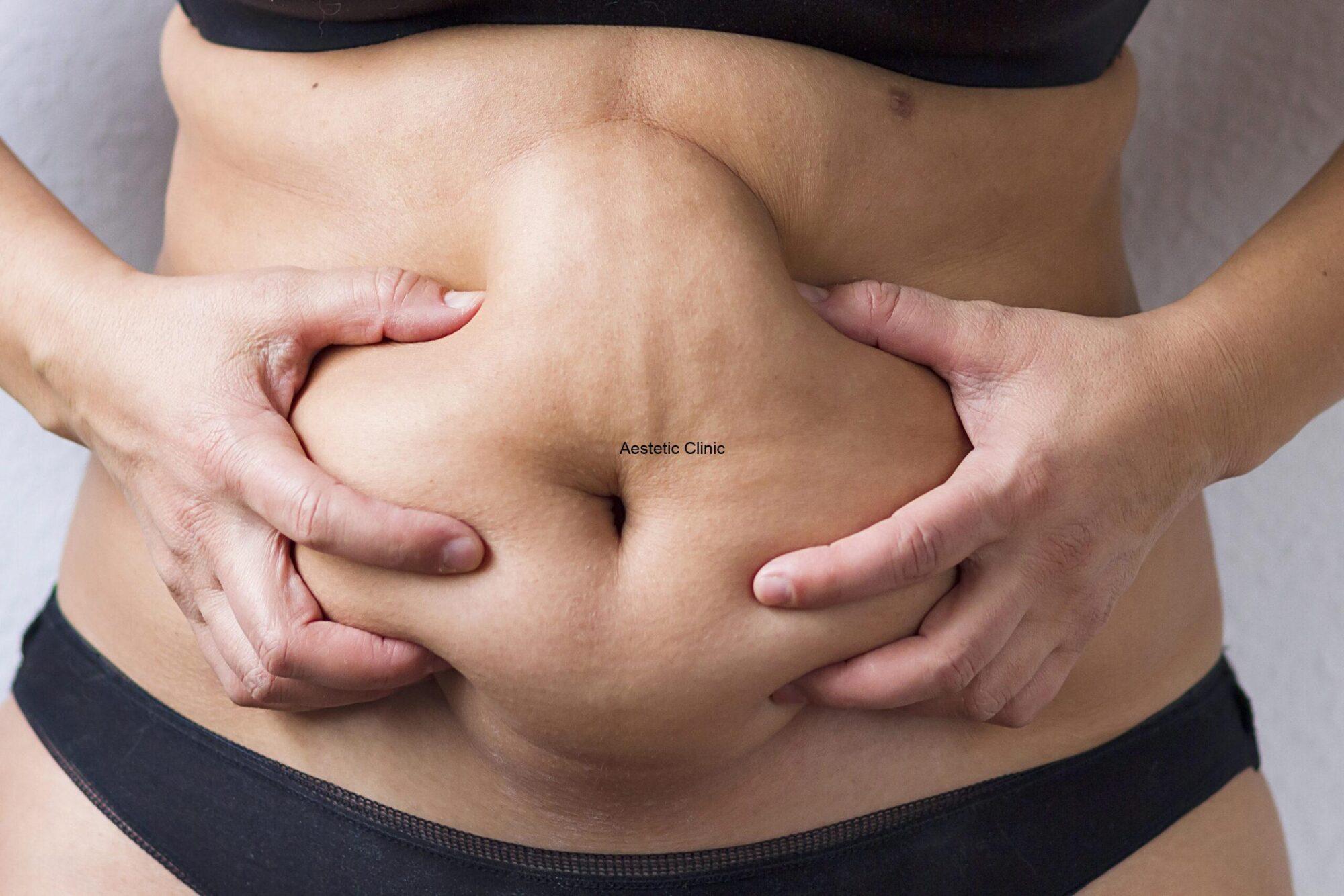 Obwisły brzuch po porodzie