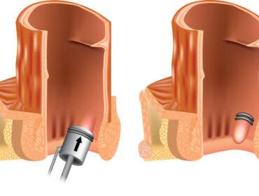 gumkowanie hemoroidów metodą Barrona