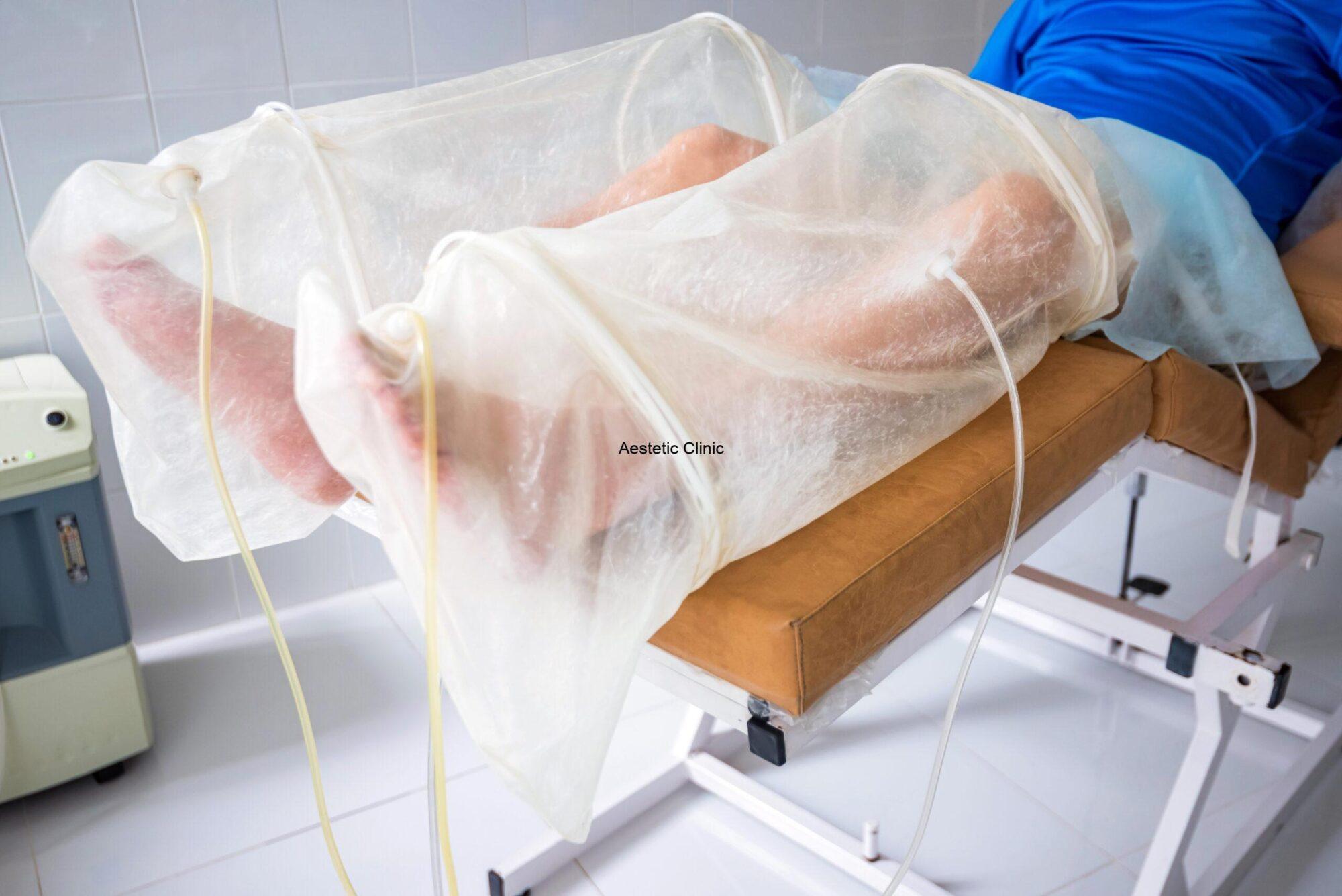 ozonoterapia, leczenie ozonem, ozonowanie krwi